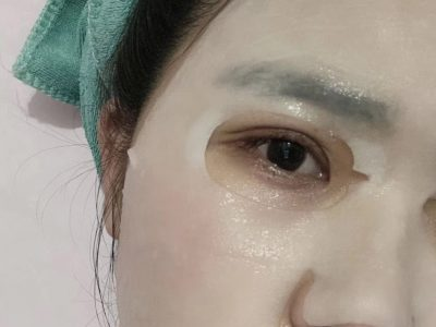 两条疤的不成型双眼皮修复