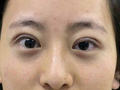 小眶突眼的秘密